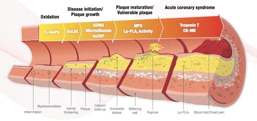 Cleveland HeartLab Cardiovascular risk