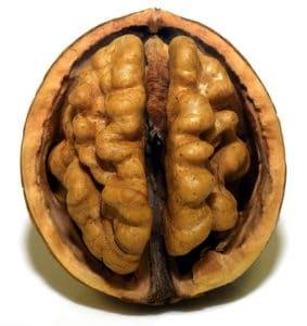 brain inside skull medical view